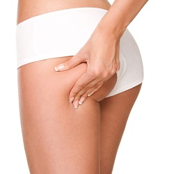 Silicone Butt Implants – Miami Implant Safety