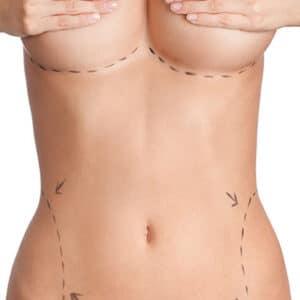Selecting A Plastic Surgeon