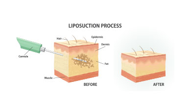 Liposuction Miami | Lipo 360 $1,000 Off | Elite Plastic Surgery