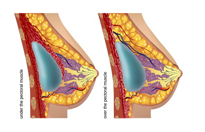 Image showing under the pectoral muscle implants and over the pectoral muscle implants